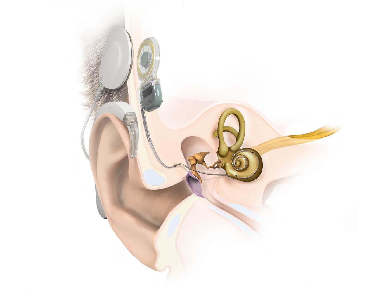 Слуховой аппарат - делаем из того что есть и имеем. - Форум - ESpec 13